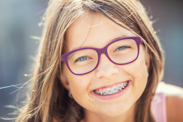 wEmyKG9 - Here's Why Braces are Super Appliances for Healthy Smiles